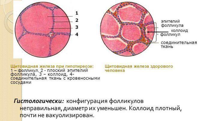 Фолликулы коллоида