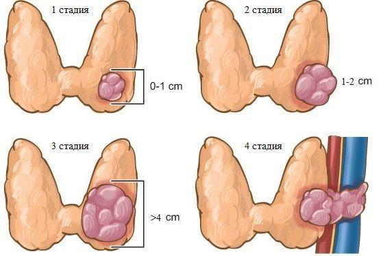 Стадии медуллярного рака