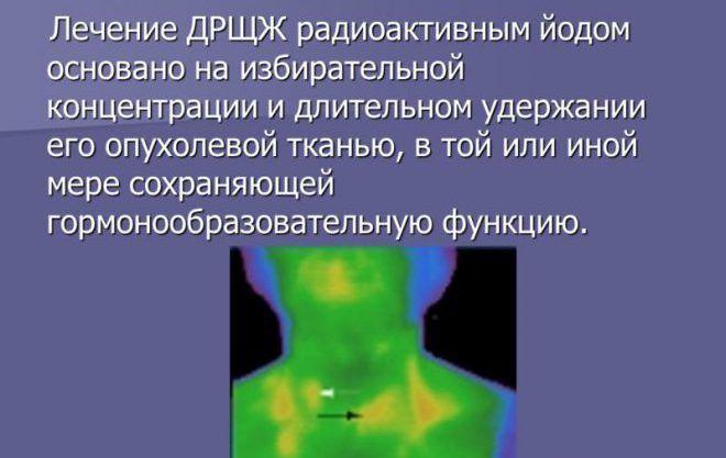 Лечения радиоактивным йодом щитовидной железы
