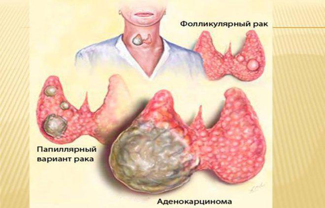 Метастазы злокачественных опухолей