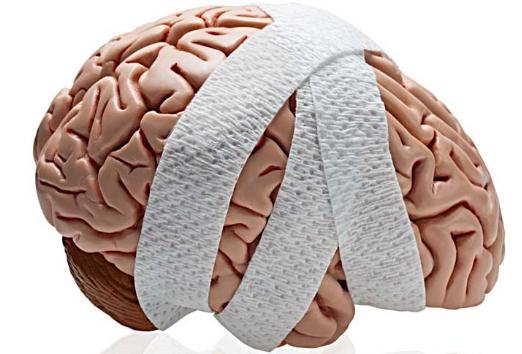 Серьезная черепно-мозговая травма