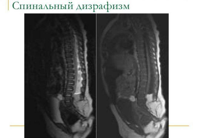 Спинальная дизрафия