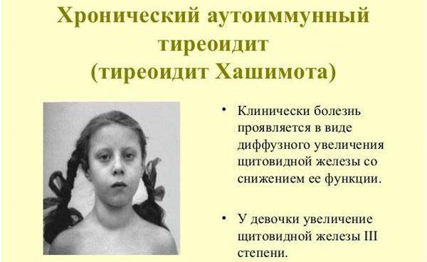 Тиреоидит Хашимото, симптомы
