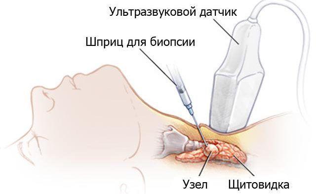 Тонкоигольной аспирационной биопсии