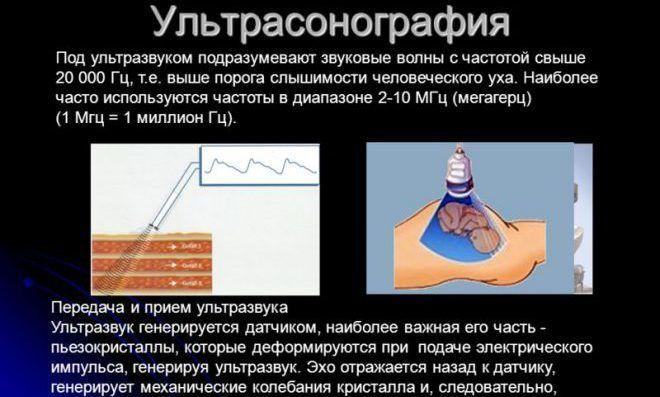 Ультрасонография