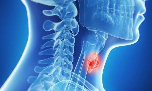 Уменьшение объема щитовидной железы