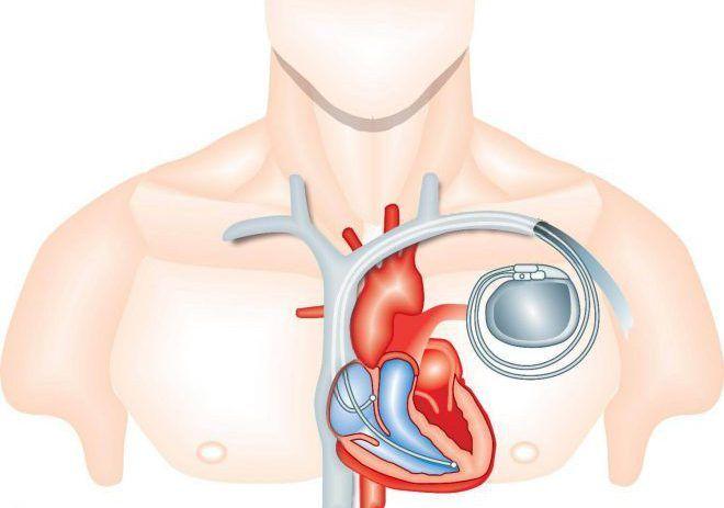 Установлен кардиостимулятор