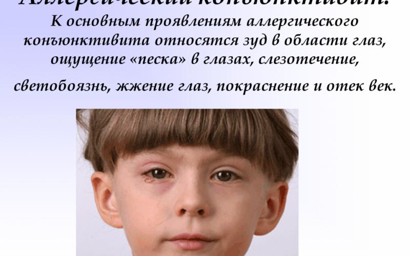 Антигистаминные препараты при псориазе Сайт о псориазе