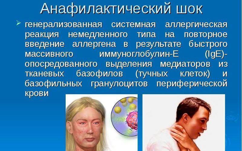 Анафилактические реакции