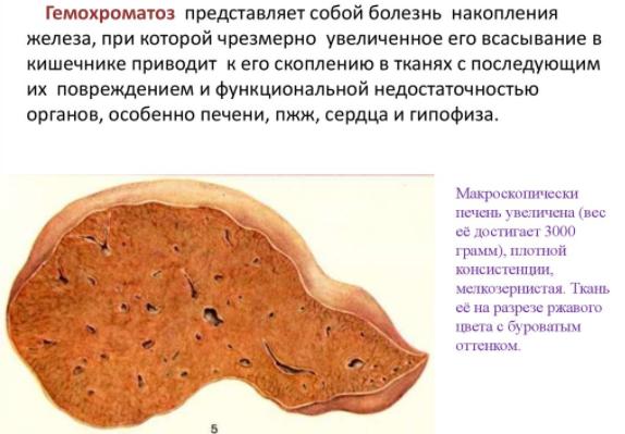 Гемохроматоз