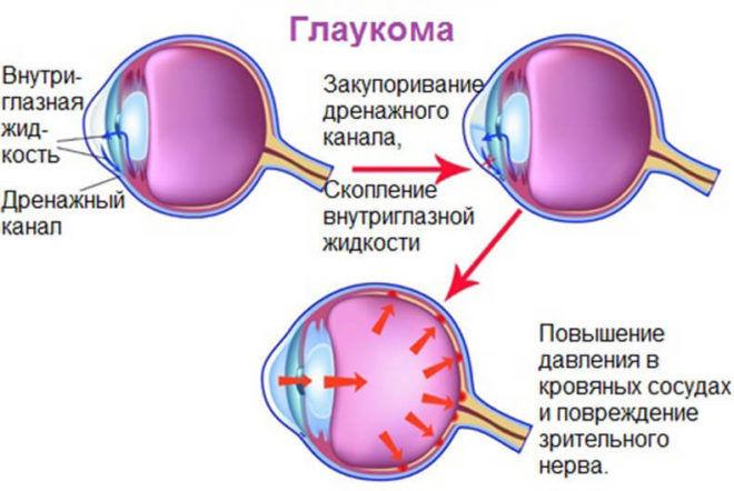 Глаукома может образоваться от применения специальных гормональных глазных гелей во время распития спиртных напитков