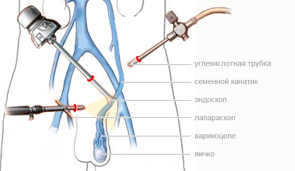 Лапароскопия варикоцеле