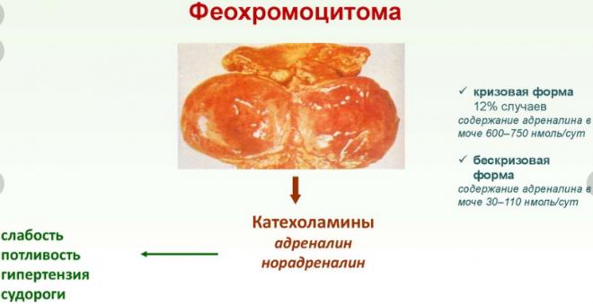Феохромоцитомы