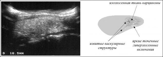 Лечение изоэхогенных образований щитовидки