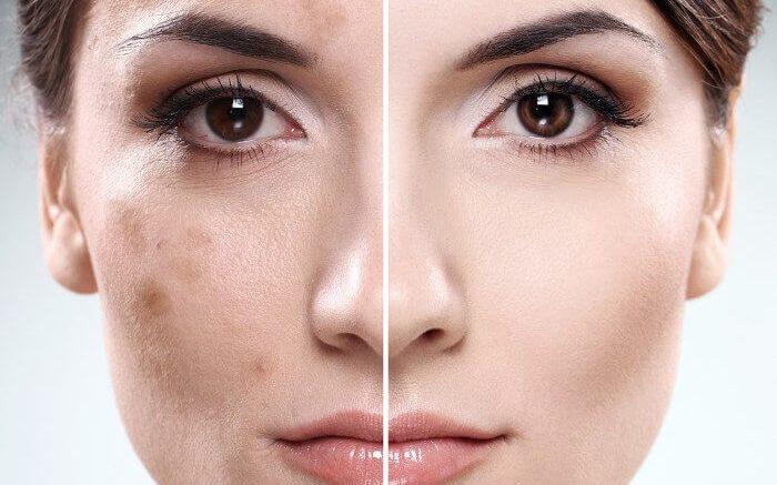 Потемнение кожи лица и сосков