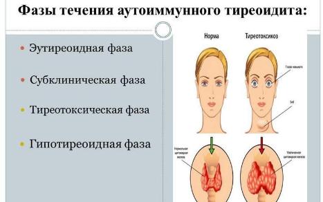 Тиреоидита