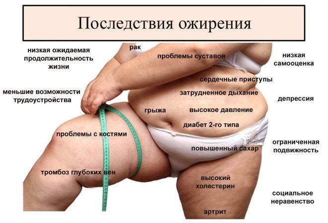 Абдоминальное ожирение - последствия