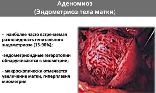 Аденомиоз и эндометриоз