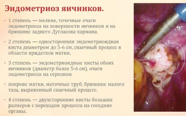 Эндометриоз причины возникновения