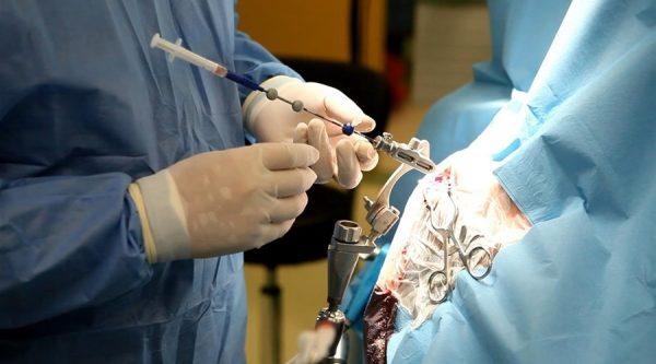 Эндоскопическое удаление опухоли головного мозга