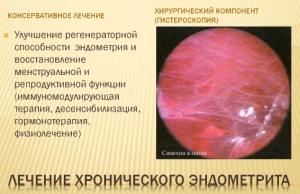 Лечение эндометрит