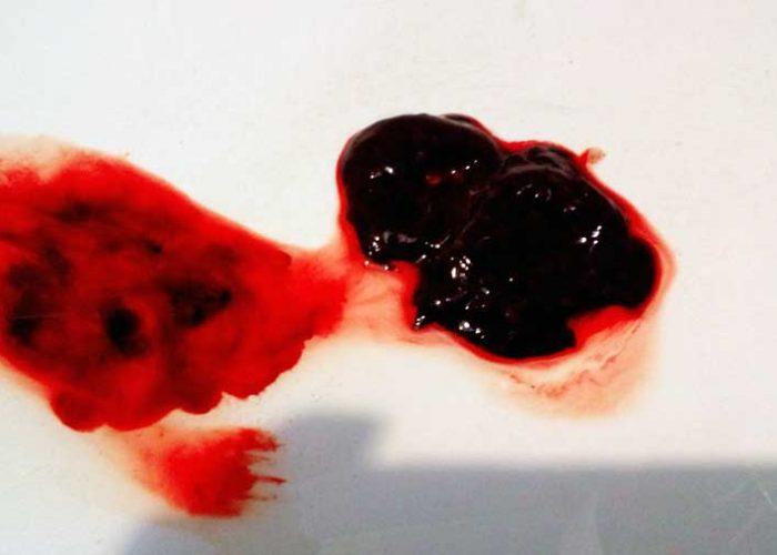 Появление в месячных выделениях сгустков крови