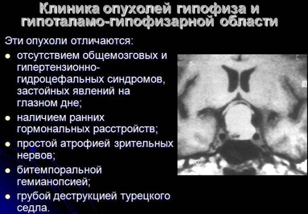 Симптомы опухоли гипоталамуса