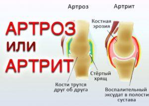Артрит или Артроз