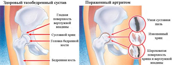 Изображение - Влияние гормональных препаратов на суставы Boli-pri-artrite-e1541401125696