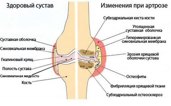Изображение - Влияние гормональных препаратов на суставы Boli-pri-artroze-e1541401069749