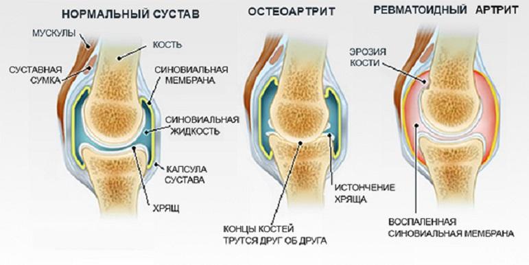 Нормальные и артрические суставы