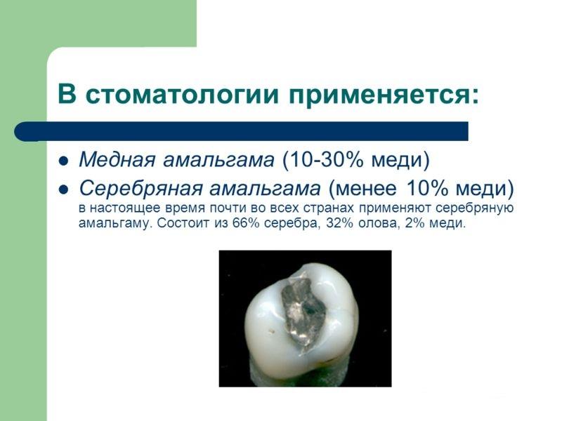 амальгама в стоматологии