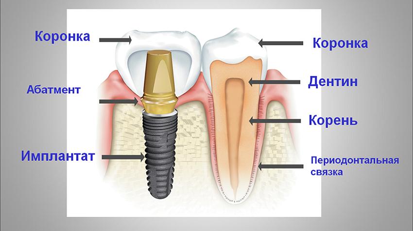 зубные импланты виды